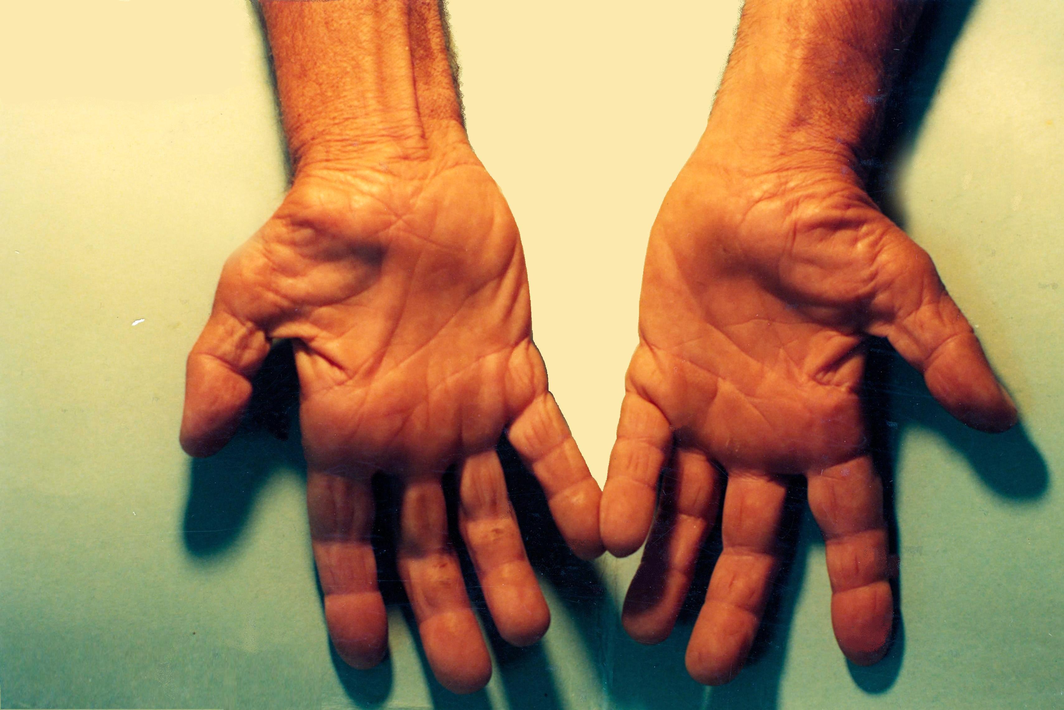 Scans worden meestal uitgevoerd door een arts, verloskundigen of radiologisch.